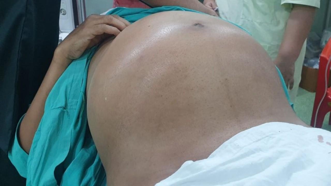 Tumor seberat 10 kg berhasil dikeluarkan dari perut. (Caters News Agency)